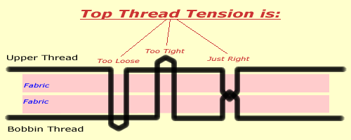jandhtension